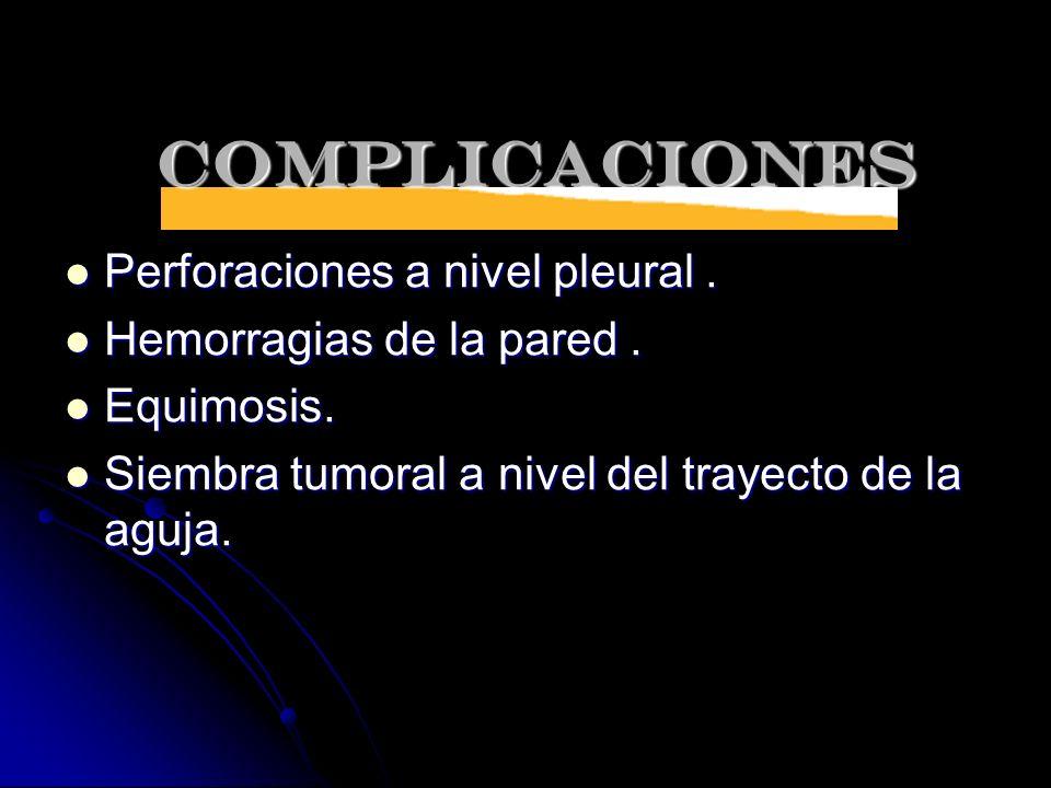 COMPLICACIONES Perforaciones a nivel pleural. Perforaciones a nivel pleural. Hemorragias de la pared. Hemorragias de la pared. Equimosis. Equimosis. S