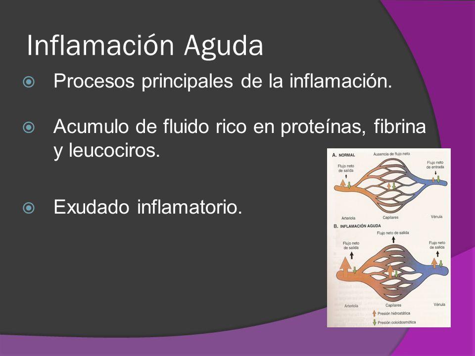 Inflamación Aguda Procesos principales de la inflamación. Acumulo de fluido rico en proteínas, fibrina y leucociros. Exudado inflamatorio.
