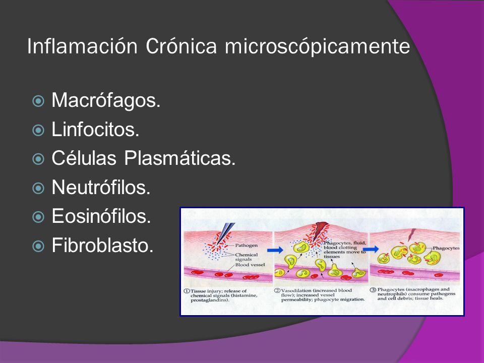 Inflamación Crónica microscópicamente Macrófagos. Linfocitos. Células Plasmáticas. Neutrófilos. Eosinófilos. Fibroblasto.