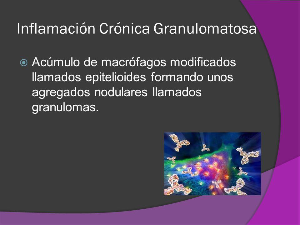 Inflamación Crónica Granulomatosa Acúmulo de macrófagos modificados llamados epitelioides formando unos agregados nodulares llamados granulomas.
