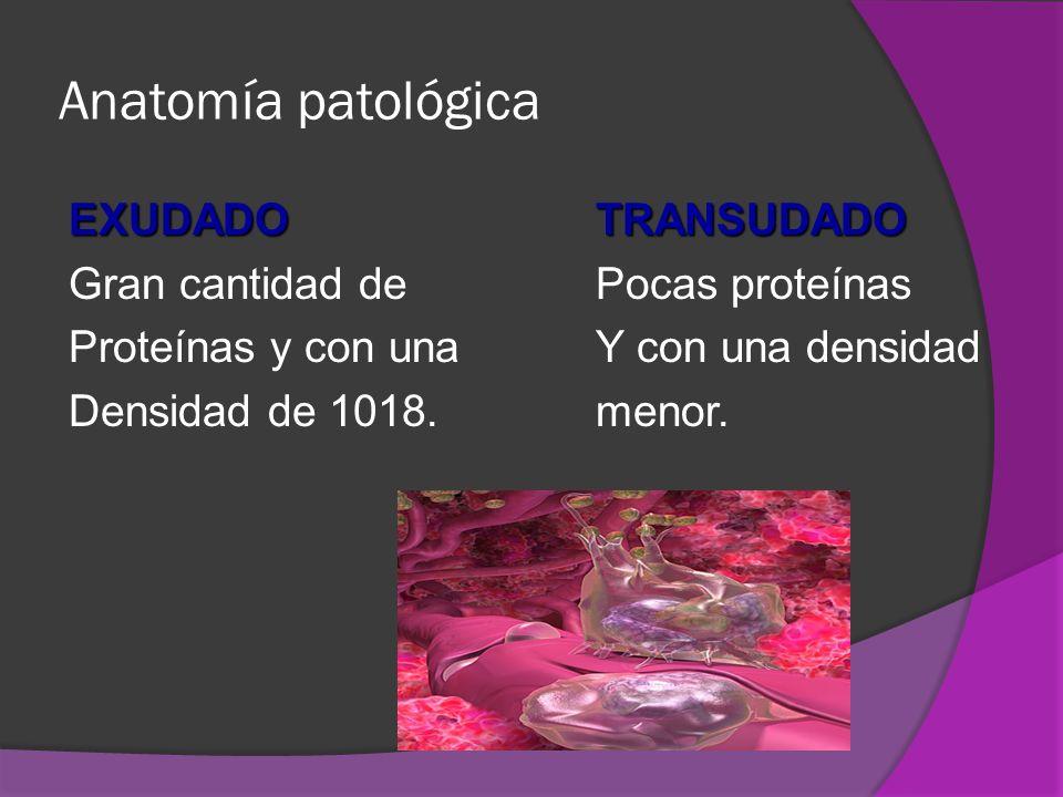 Anatomía patológica EXUDADOTRANSUDADO Gran cantidad de Pocas proteínas Proteínas y con una Y con una densidad Densidad de 1018.menor.