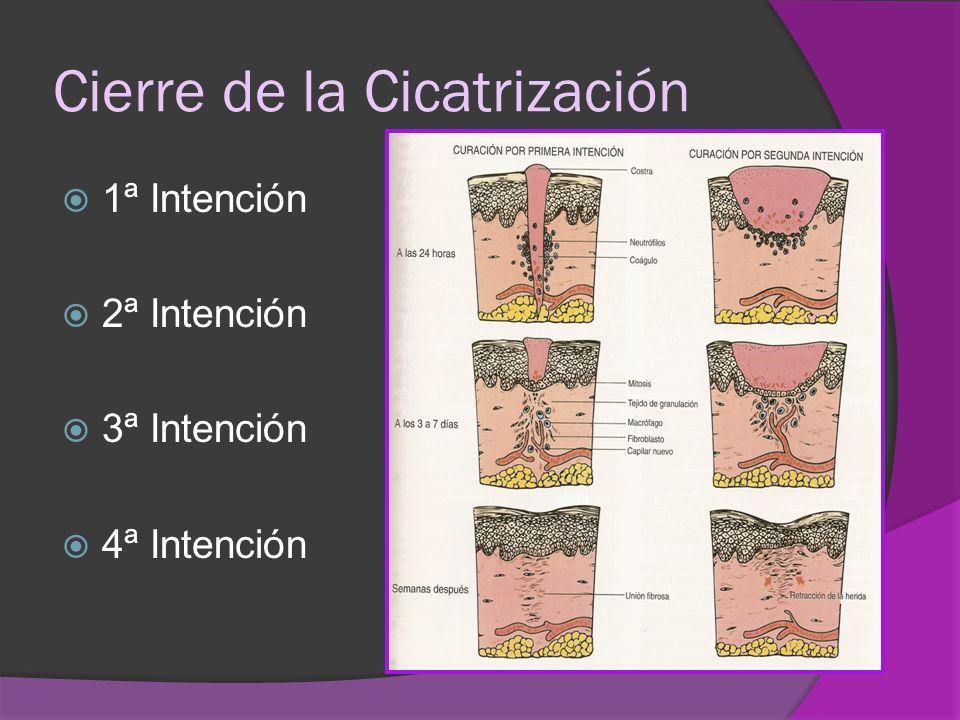Cierre de la Cicatrización 1ª Intención 2ª Intención 3ª Intención 4ª Intención