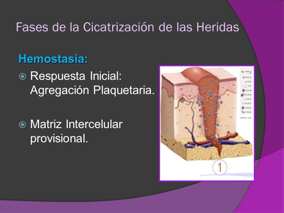 Fases de la Cicatrización de las Heridas Hemostasia: Respuesta Inicial: Agregación Plaquetaria. Matriz Intercelular provisional.