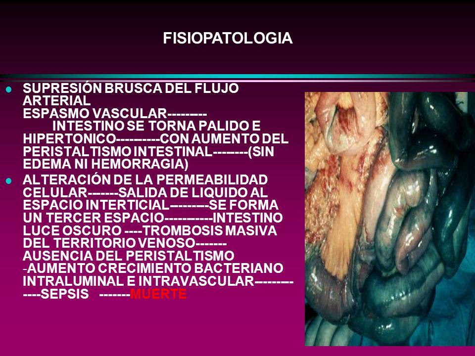l SUPRESIÓN BRUSCA DEL FLUJO ARTERIAL ESPASMO VASCULAR--------- INTESTINO SE TORNA PALIDO E HIPERTONICO----------CON AUMENTO DEL PERISTALTISMO INTESTI