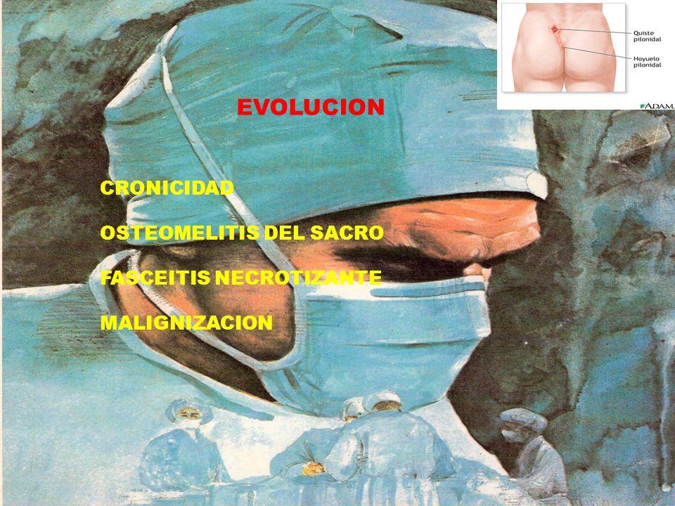 EVOLUCION CRONICIDAD OSTEOMELITIS DEL SACRO FASCEITIS NECROTIZANTE MALIGNIZACION