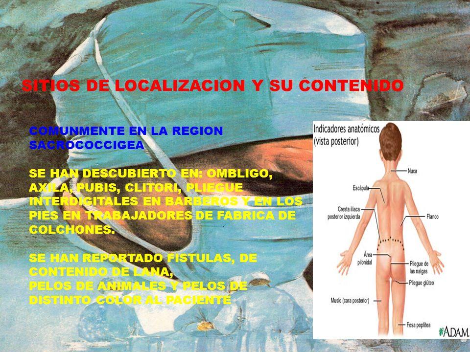 EPIDEMIOLOGIA SEXO: MAS FRECUENTE EN HOMBRES RELACION 5:1 EDAD: MAYORES DE 15 AÑOS OCUPACION: CHOFERES, MILITARES, SECRETARIAS ESTUDIANTES.