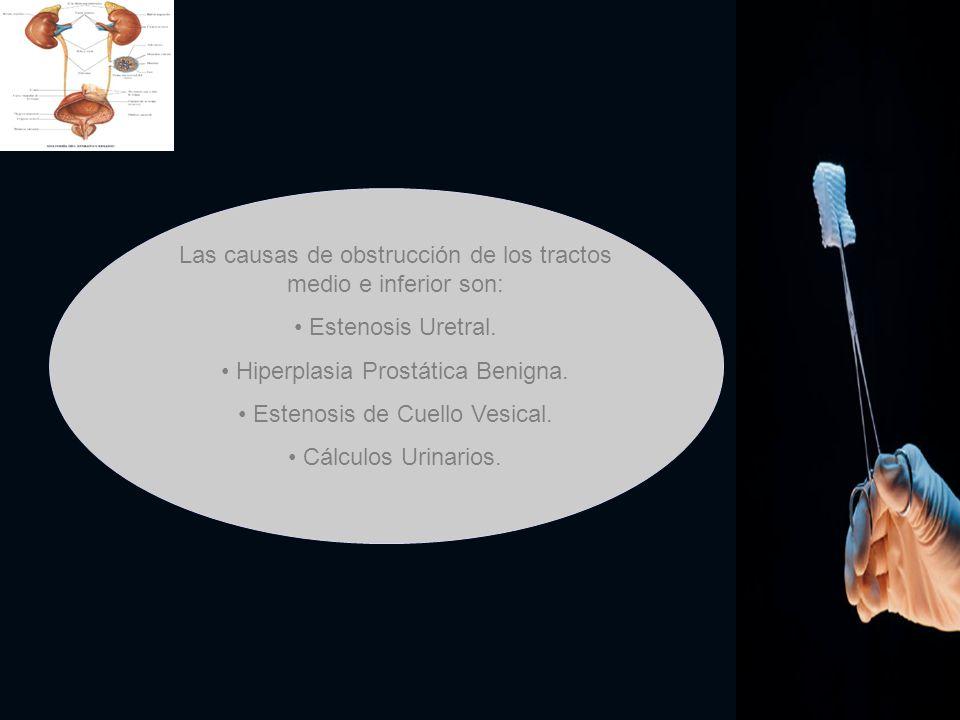 Las causas de obstrucción de los tractos medio e inferior son: Estenosis Uretral. Hiperplasia Prostática Benigna. Estenosis de Cuello Vesical. Cálculo