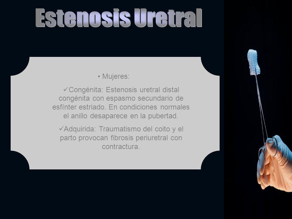 Mujeres: Congénita: Estenosis uretral distal congénita con espasmo secundario de esfínter estriado. En condiciones normales el anillo desaparece en la