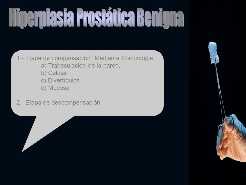 1.- Etapa de compensación: Mediante Cistoscopia a) Trabeculación de la pared. b) Celdas c) Divertículos d) Mucosa 2.- Etapa de descompensación
