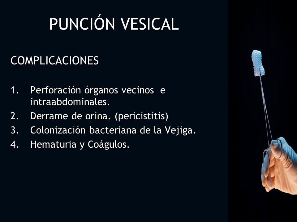 COMPLICACIONES 1.Perforación órganos vecinos e intraabdominales. 2.Derrame de orina. (pericistitis) 3.Colonización bacteriana de la Vejiga. 4.Hematuri