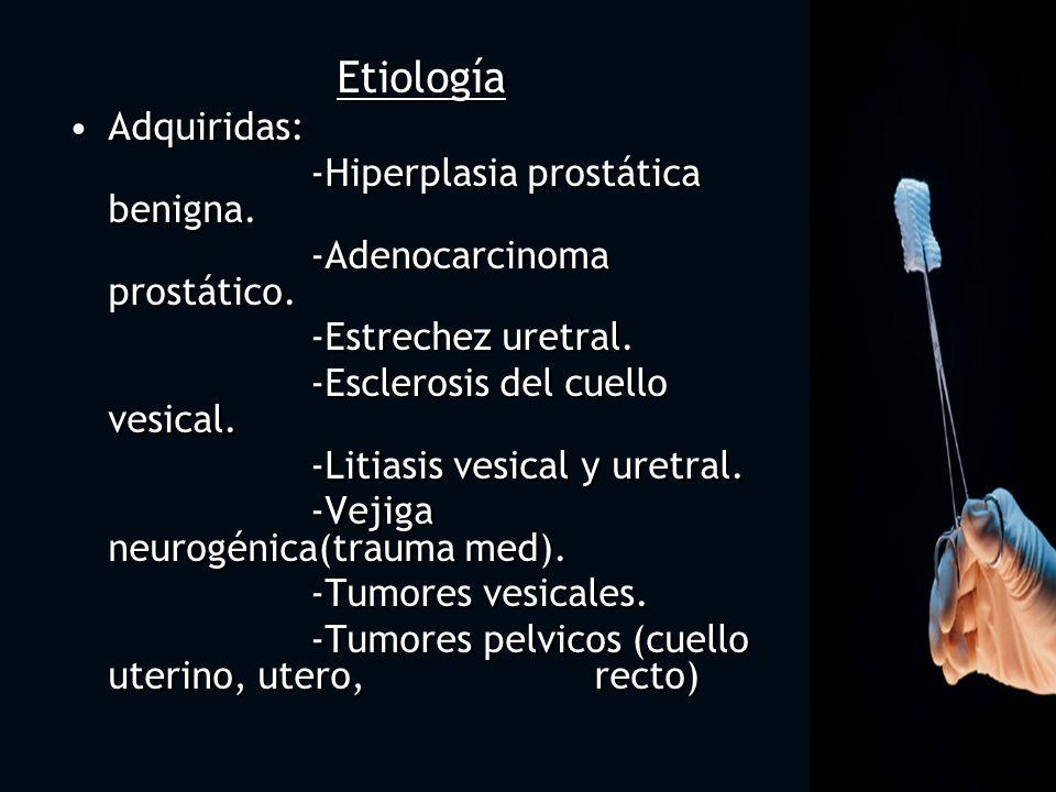 Etiología Adquiridas: -Hiperplasia prostática benigna. -Adenocarcinoma prostático. -Estrechez uretral. -Esclerosis del cuello vesical. -Litiasis vesic
