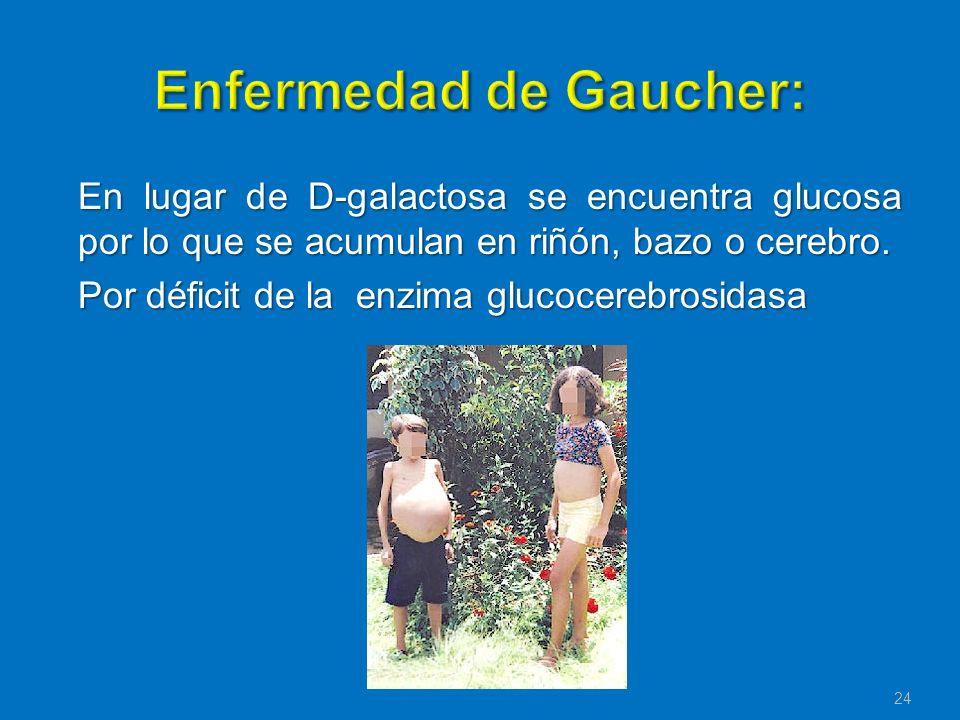 En lugar de D-galactosa se encuentra glucosa por lo que se acumulan en riñón, bazo o cerebro. Por déficit de la enzima glucocerebrosidasa 24