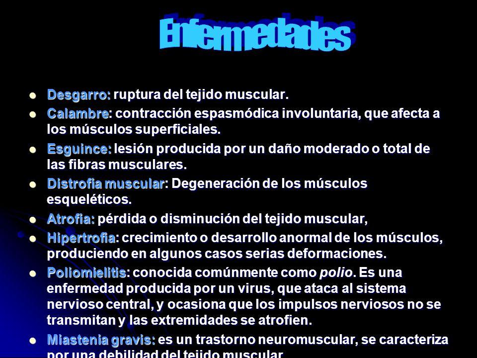 Desgarro: ruptura del tejido muscular. Desgarro: ruptura del tejido muscular. Calambre: contracción espasmódica involuntaria, que afecta a los músculo