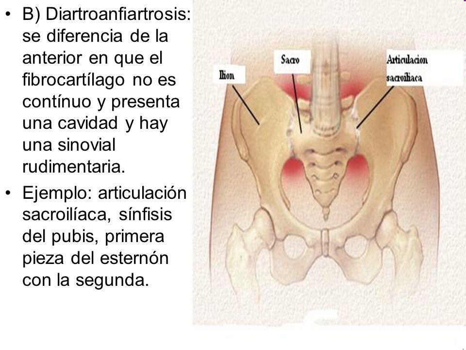 B) Diartroanfiartrosis: se diferencia de la anterior en que el fibrocartílago no es contínuo y presenta una cavidad y hay una sinovial rudimentaria. E