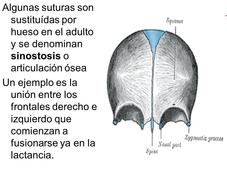 Algunas suturas son sustituídas por hueso en el adulto y se denominan sinostosis o articulación ósea Un ejemplo es la unión entre los frontales derech