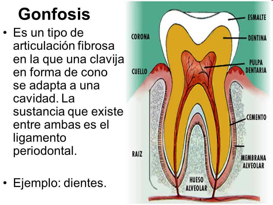 Gonfosis Es un tipo de articulación fibrosa en la que una clavija en forma de cono se adapta a una cavidad. La sustancia que existe entre ambas es el