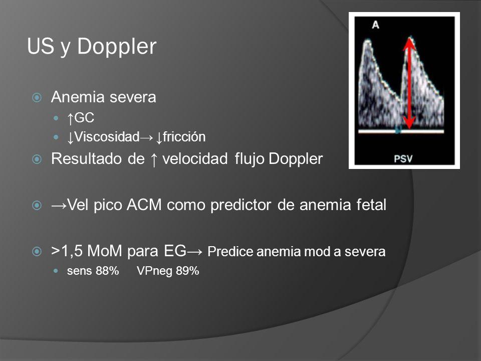 US y Doppler Anemia severa GC Viscosidad fricción Resultado de velocidad flujo Doppler Vel pico ACM como predictor de anemia fetal >1,5 MoM para EG Pr