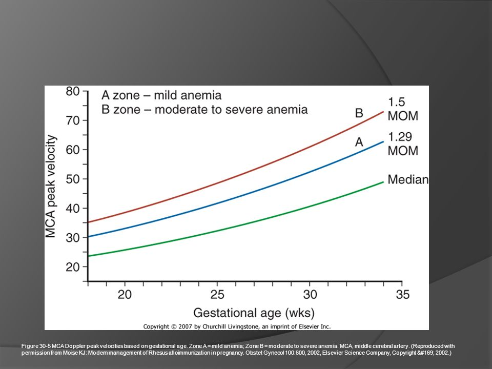 Figure 30-5 MCA Doppler peak velocities based on gestational age. Zone A = mild anemia; Zone B = moderate to severe anemia. MCA, middle cerebral arter