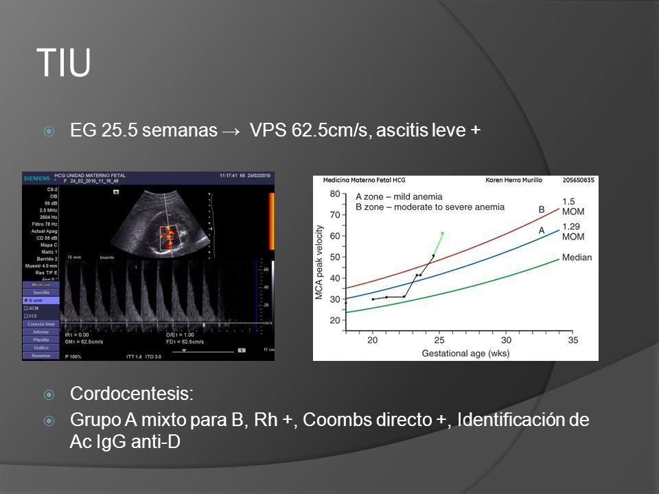 TIU EG 25.5 semanas VPS 62.5cm/s, ascitis leve + Cordocentesis: Grupo A mixto para B, Rh +, Coombs directo +, Identificación de Ac IgG anti-D