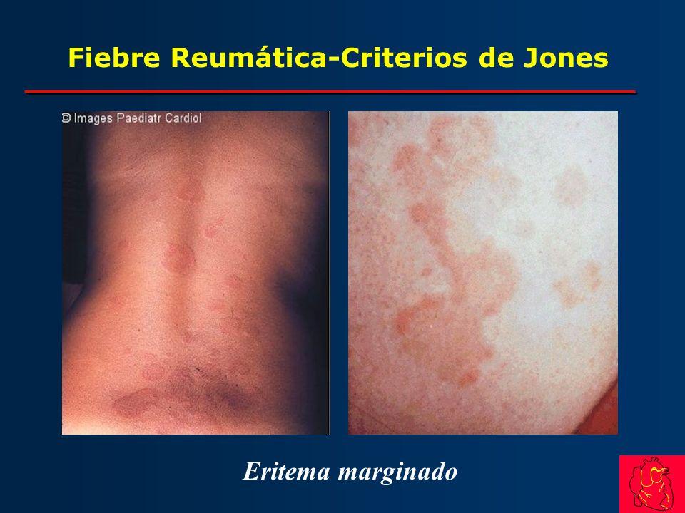 Fiebre Reumática-Criterios de Jones Eritema marginado