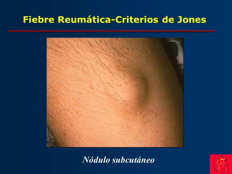 Fiebre Reumática-Criterios de Jones Nódulo subcutáneo