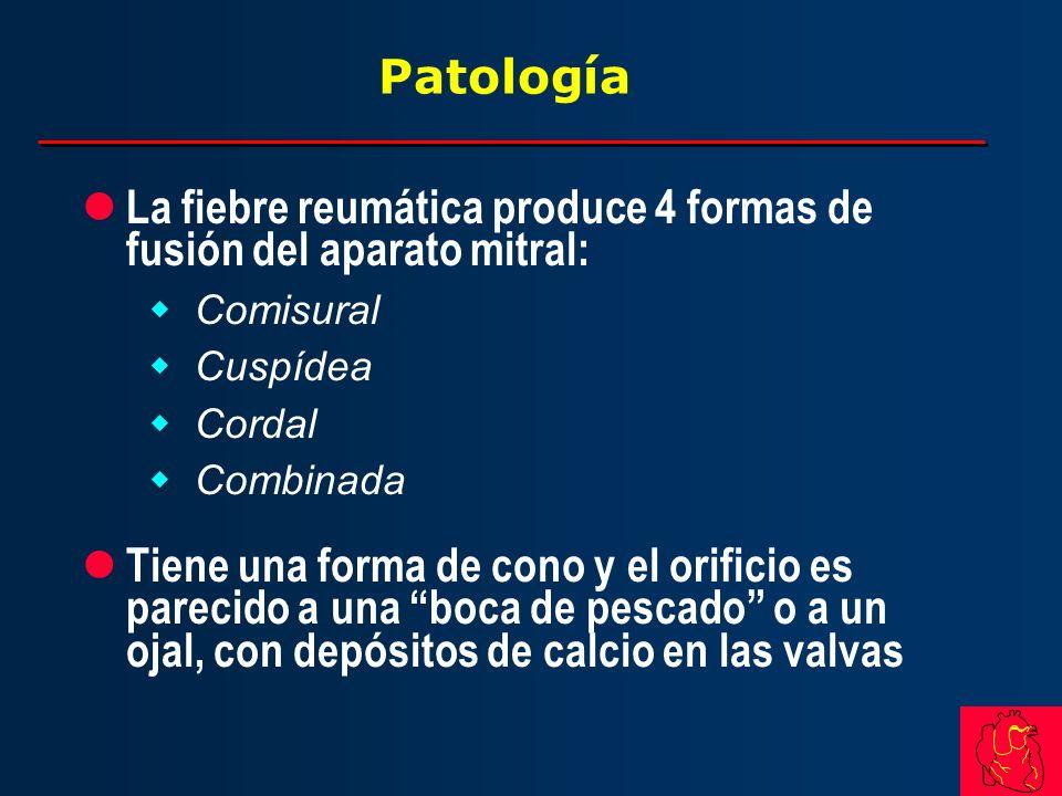 Patología l La fiebre reumática produce 4 formas de fusión del aparato mitral: wComisural wCuspídea wCordal wCombinada l Tiene una forma de cono y el