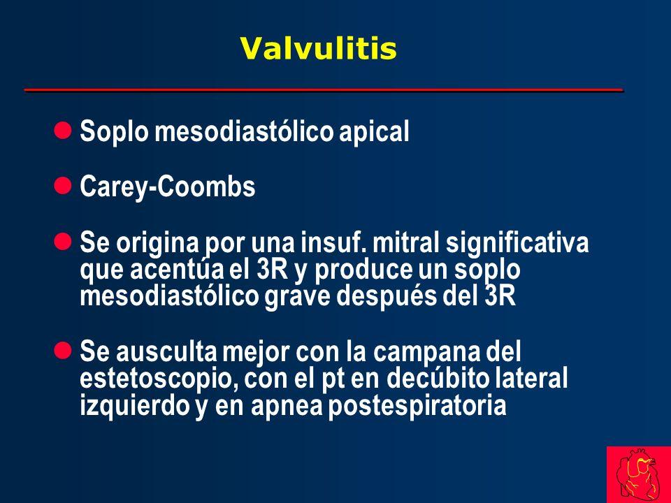 Valvulitis l Soplo mesodiastólico apical l Carey-Coombs l Se origina por una insuf. mitral significativa que acentúa el 3R y produce un soplo mesodias