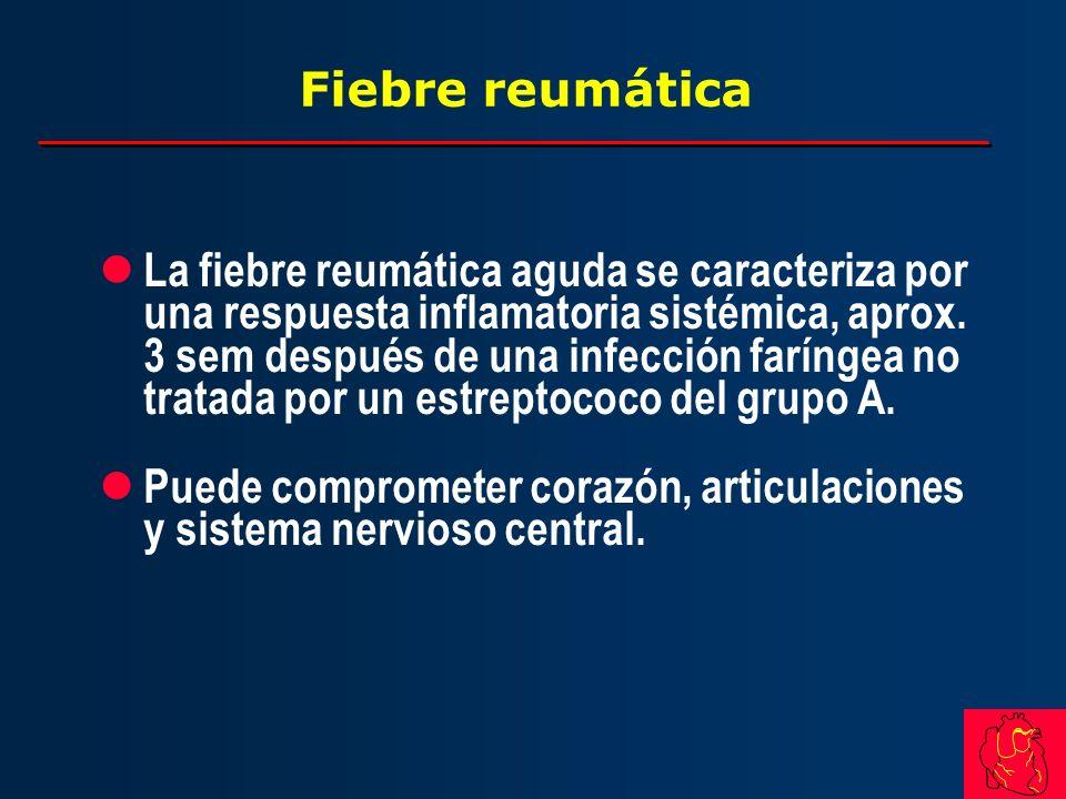 Fiebre reumática l La fiebre reumática aguda se caracteriza por una respuesta inflamatoria sistémica, aprox. 3 sem después de una infección faríngea n