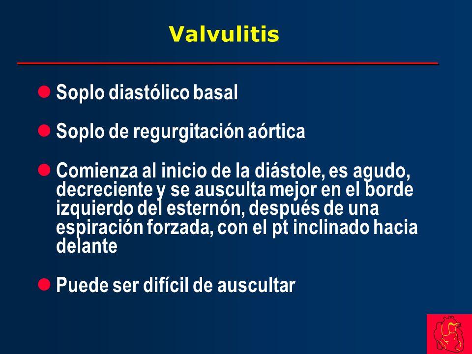 Valvulitis l Soplo diastólico basal l Soplo de regurgitación aórtica l Comienza al inicio de la diástole, es agudo, decreciente y se ausculta mejor en