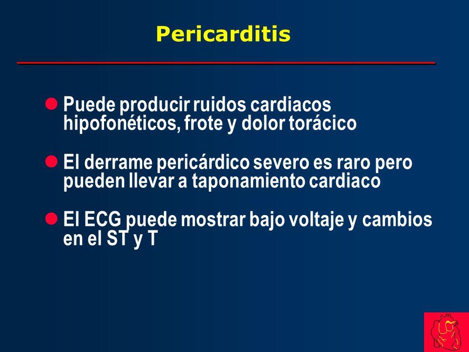 Pericarditis l Puede producir ruidos cardiacos hipofonéticos, frote y dolor torácico l El derrame pericárdico severo es raro pero pueden llevar a tapo
