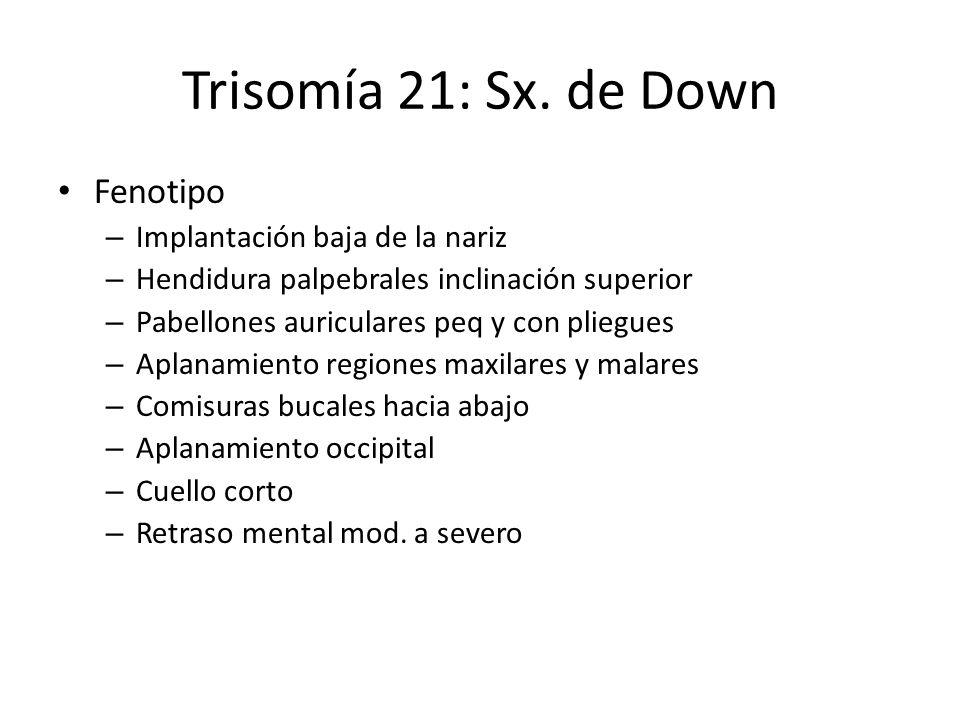 Trisomía 21: Sx. de Down Fenotipo – Implantación baja de la nariz – Hendidura palpebrales inclinación superior – Pabellones auriculares peq y con plie