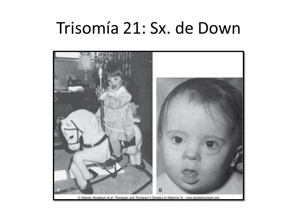 Trisomía 21: Sx. de Down