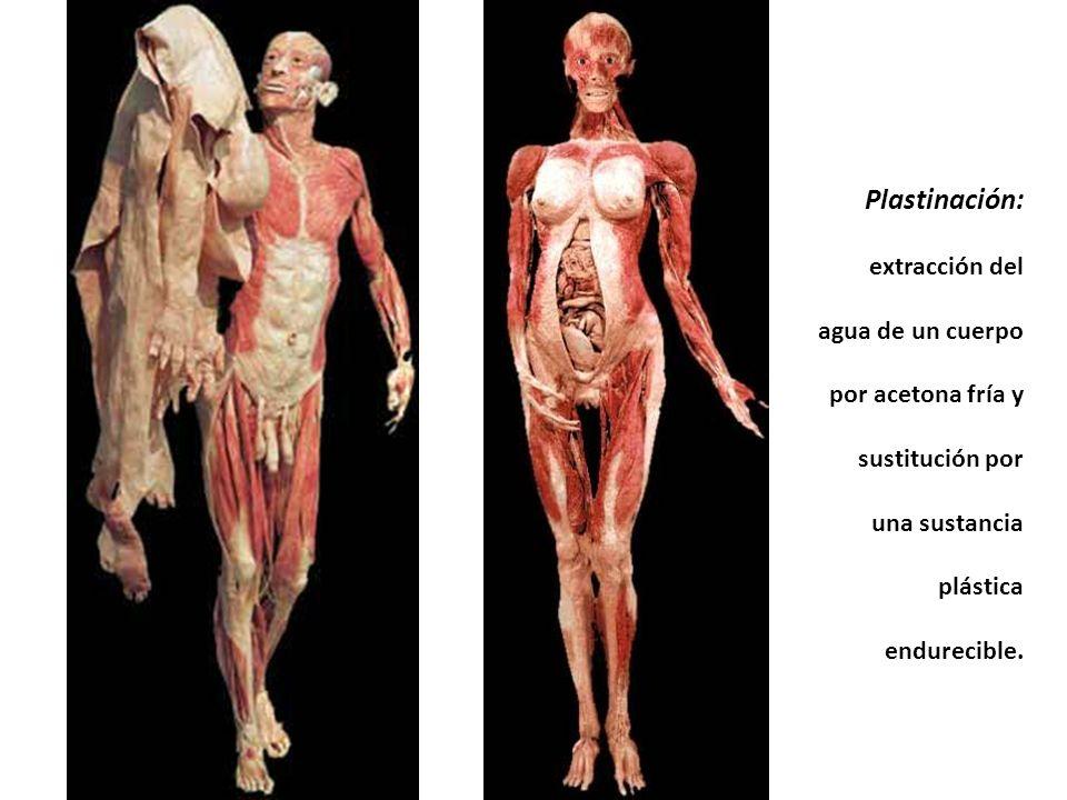 Plastinación: extracción del agua de un cuerpo por acetona fría y sustitución por una sustancia plástica endurecible.