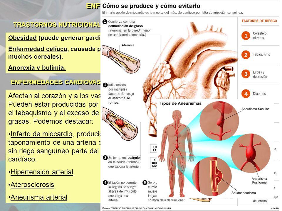 ENFERMEDADES NO INFECCIOSAS TRASTORNOS NUTRICIONALES Obesidad (puede generar gardiopatías, diabetes, hemorragia cerebral…) Enfermedad celíaca, causada