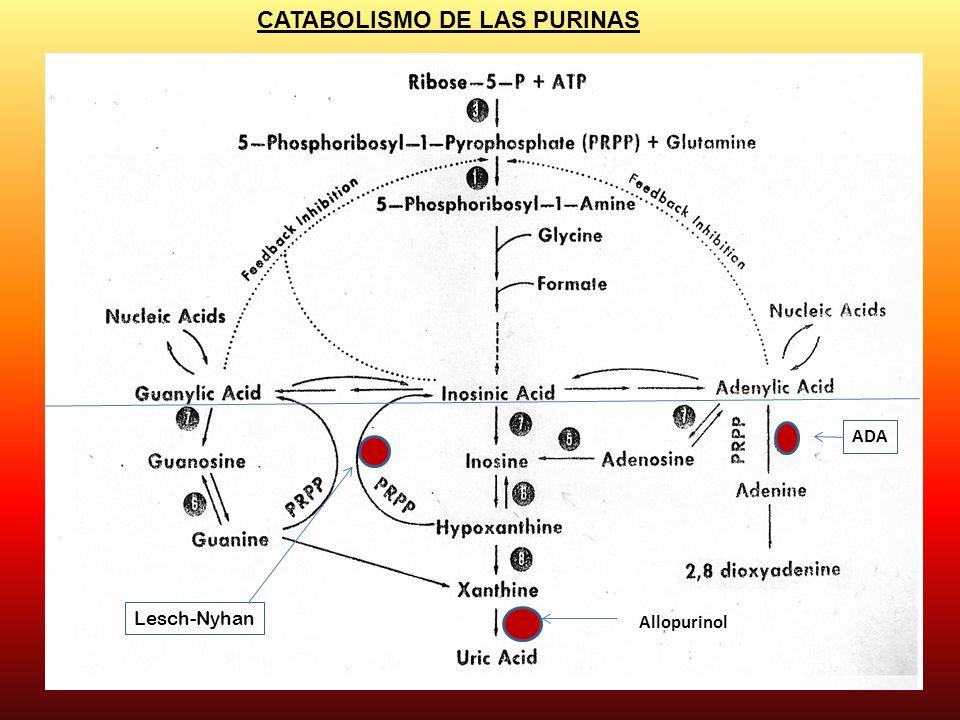CATABOLISMO DE LAS PURINAS Lesch-Nyhan ADA Allopurinol