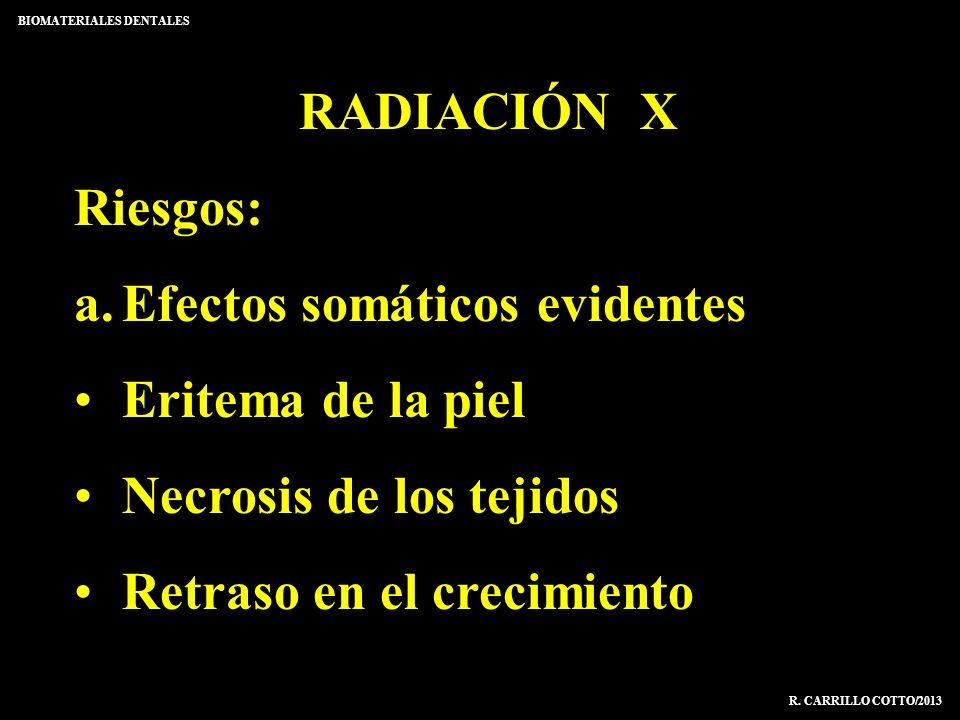 RADIACIÓN X Riesgos: a.Efectos somáticos evidentes Eritema de la piel Necrosis de los tejidos Retraso en el crecimiento BIOMATERIALES DENTALES R. CARR