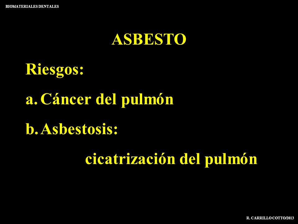 ASBESTO Riesgos: a.Cáncer del pulmón b.Asbestosis: cicatrización del pulmón BIOMATERIALES DENTALES R. CARRILLO COTTO/2013