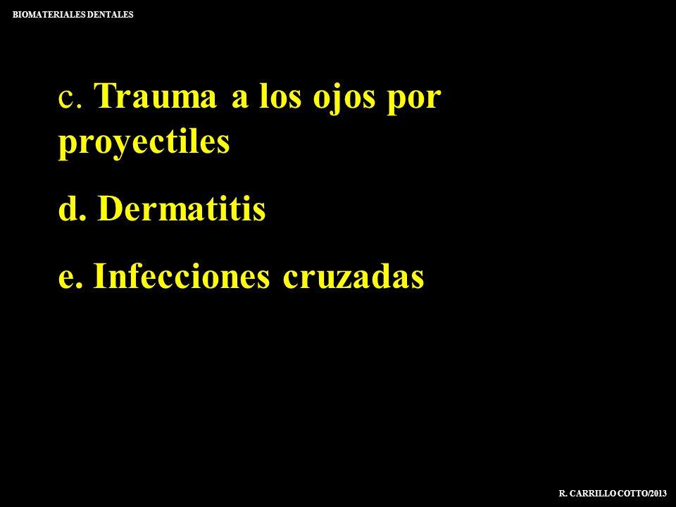 c. Trauma a los ojos por proyectiles d. Dermatitis e. Infecciones cruzadas BIOMATERIALES DENTALES R. CARRILLO COTTO/2013