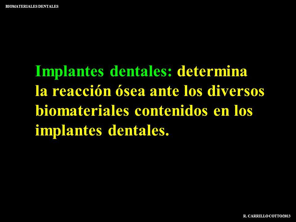 Implantes dentales: determina la reacción ósea ante los diversos biomateriales contenidos en los implantes dentales. BIOMATERIALES DENTALES R. CARRILL