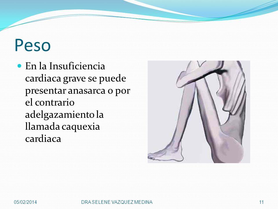 Peso En la Insuficiencia cardiaca grave se puede presentar anasarca o por el contrario adelgazamiento la llamada caquexia cardiaca 05/02/2014DRA SELEN