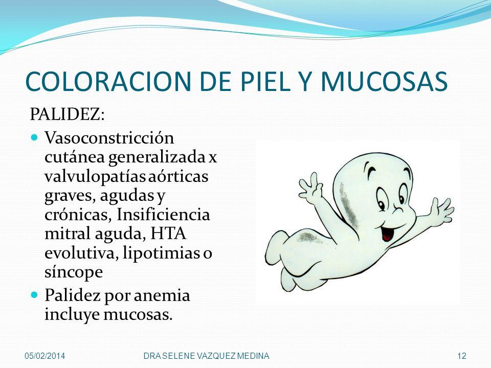 COLORACION DE PIEL Y MUCOSAS PALIDEZ: Vasoconstricción cutánea generalizada x valvulopatías aórticas graves, agudas y crónicas, Insificiencia mitral a