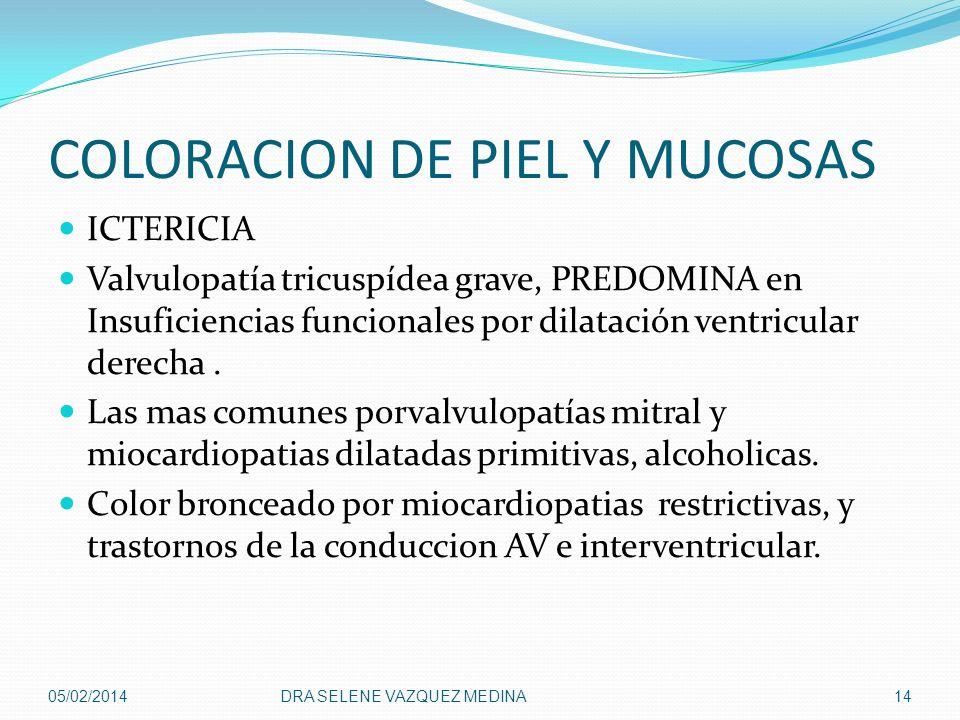 COLORACION DE PIEL Y MUCOSAS ICTERICIA Valvulopatía tricuspídea grave, PREDOMINA en Insuficiencias funcionales por dilatación ventricular derecha. Las