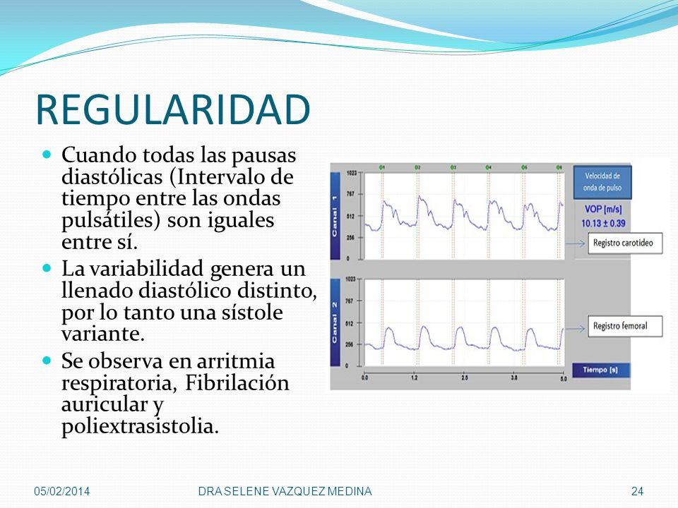 REGULARIDAD Cuando todas las pausas diastólicas (Intervalo de tiempo entre las ondas pulsátiles) son iguales entre sí. La variabilidad genera un llena