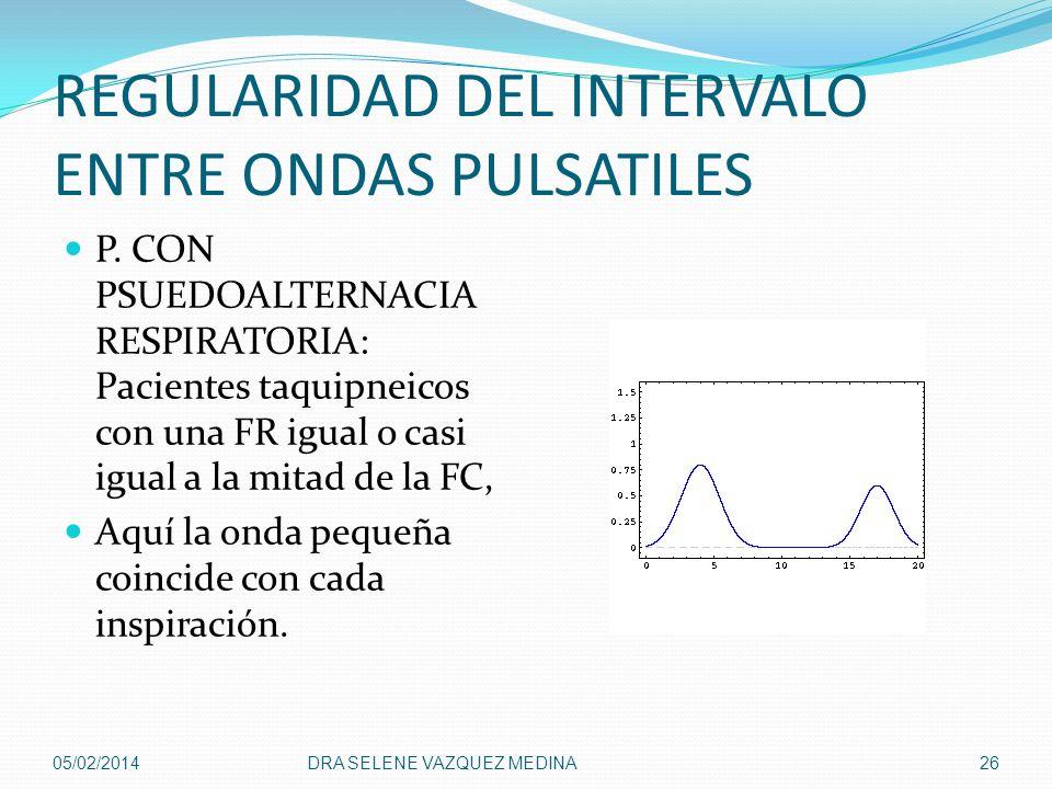 REGULARIDAD DEL INTERVALO ENTRE ONDAS PULSATILES P. CON PSUEDOALTERNACIA RESPIRATORIA: Pacientes taquipneicos con una FR igual o casi igual a la mitad
