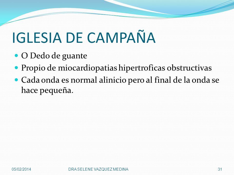 IGLESIA DE CAMPAÑA O Dedo de guante Propio de miocardiopatias hipertroficas obstructivas Cada onda es normal alinicio pero al final de la onda se hace