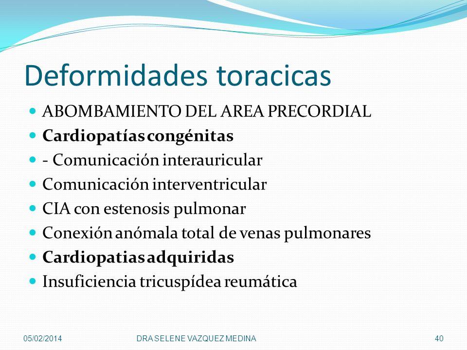 Deformidades toracicas ABOMBAMIENTO DEL AREA PRECORDIAL Cardiopatías congénitas - Comunicación interauricular Comunicación interventricular CIA con es
