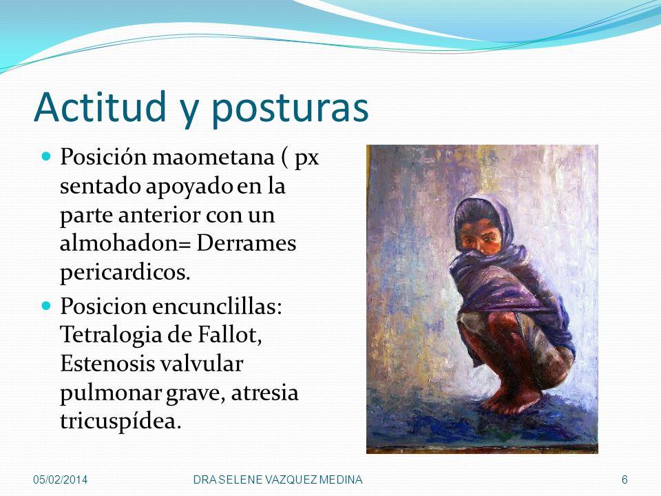 Actitud y posturas Posición maometana ( px sentado apoyado en la parte anterior con un almohadon= Derrames pericardicos. Posicion encunclillas: Tetral