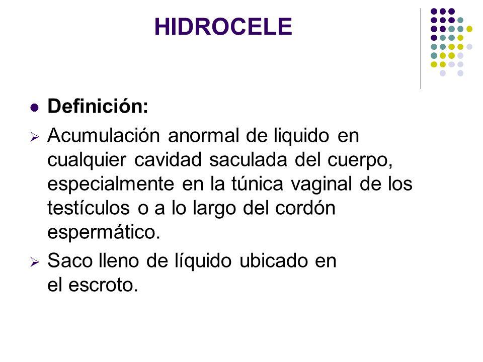 HIDROCELE Definición: Acumulación anormal de liquido en cualquier cavidad saculada del cuerpo, especialmente en la túnica vaginal de los testículos o
