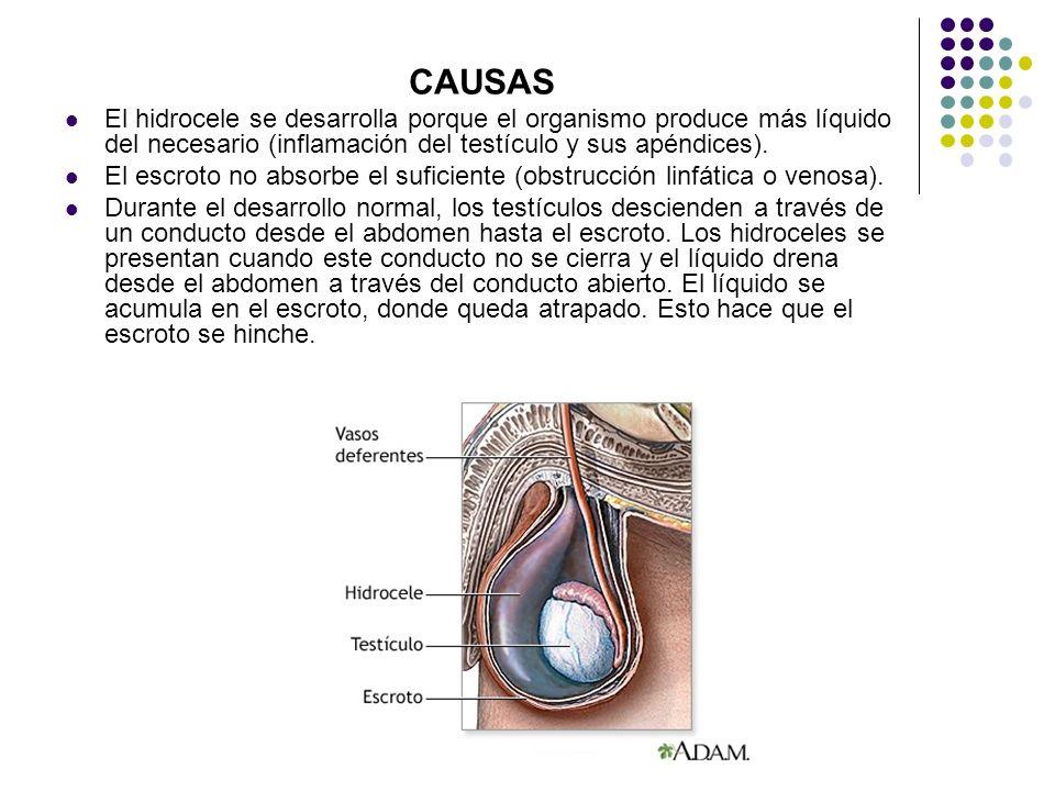 CAUSAS El hidrocele se desarrolla porque el organismo produce más líquido del necesario (inflamación del testículo y sus apéndices). El escroto no abs