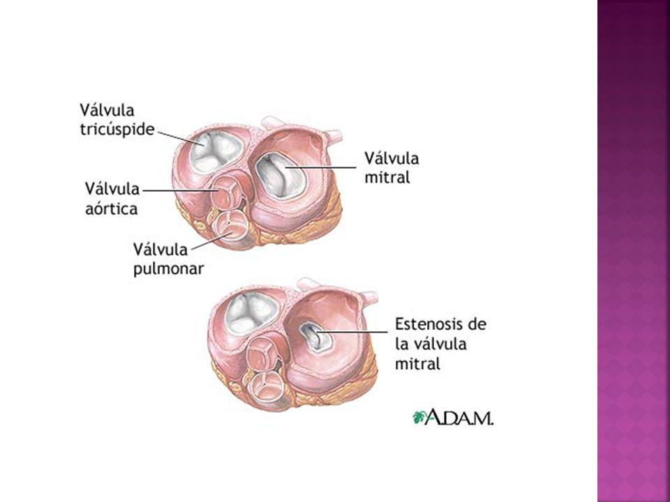 Cuando se contrae cada cámara, impulsa una parte de sangre hacia el ventrículo o fuera del corazón a través de una arteria.
